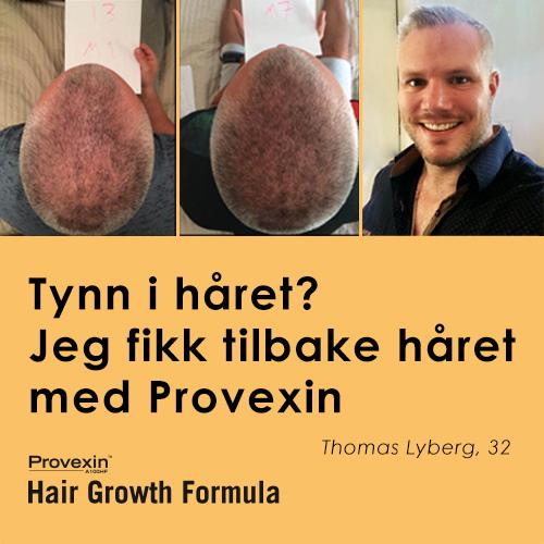 Norvital Provexin 3